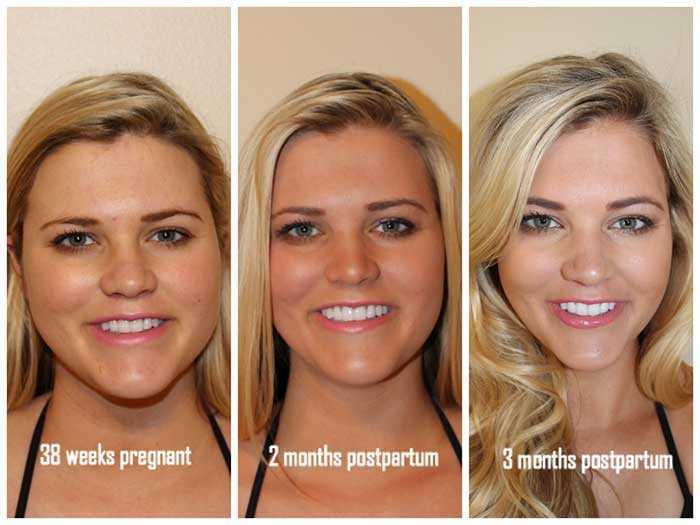 Похудение лица вместе с телом за 3 месяца