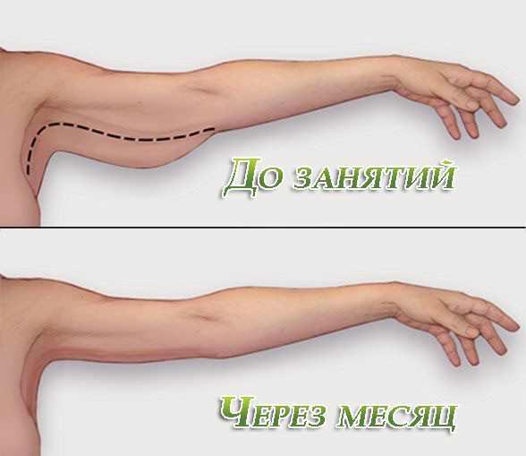 Руки до и после похудения