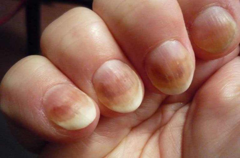 Инкубационный период грибка ногтей рук
